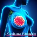Formazione sul carcinoma mammario